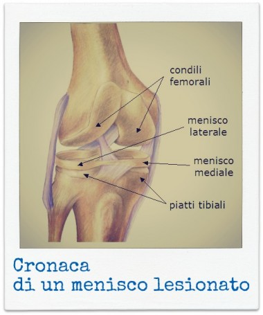 menisco,lesione,artroscopia,sinovite,legamento,crociato,ospediale,infermiere,pontedera,lotti,cassisa